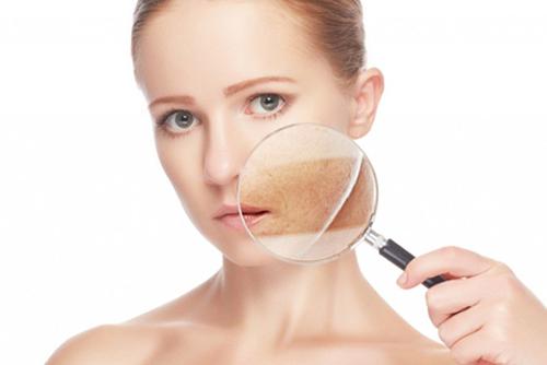 Consejos para prevenir el melanoma